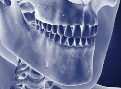 턱의 골수염
