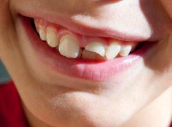 깨진 이빨