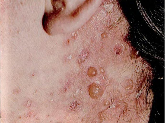 Dühring 피부염