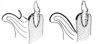 Frenuloplasty 굴레