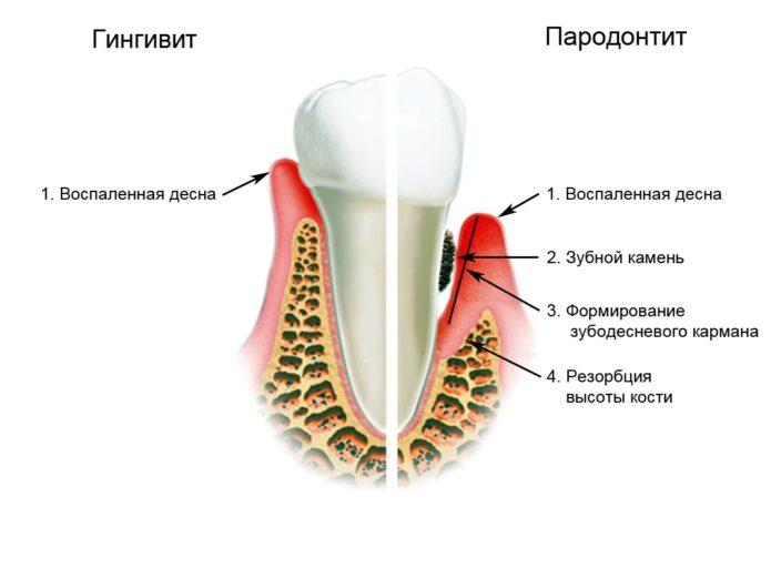 치아와 잇몸의 질병